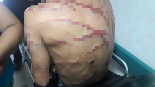 Se lo llevan y lo regresan golpeado y con la espalda destrozada en La Paz
