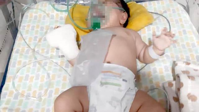 Bebé de dos meses fue entregada con fractura craneal de guardería de La Paz