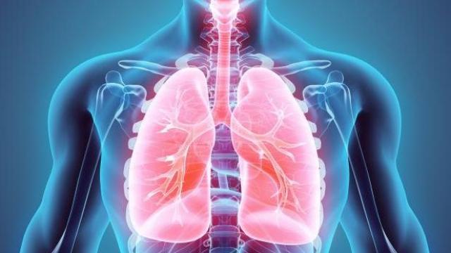 Sin acceso a tratamiento, 70% de enfermos con cáncer de pulmón en México