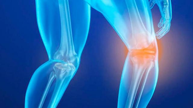 Osteoporosis costaría al país más de 6 mil mdp en 2020, alerta experta