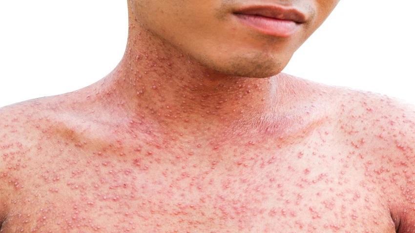 Ya van 46 casos de sarampión en México